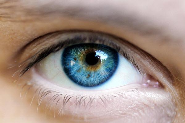 105 Карий цвет глаз поменяют на синий с помощью лазера