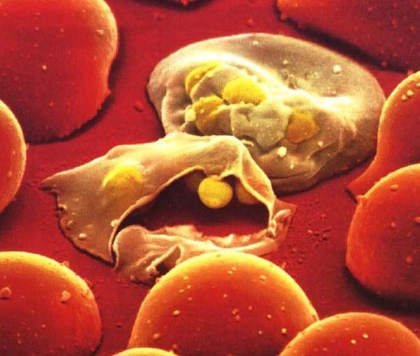 1051 Как комар борется с возбудителем малярии