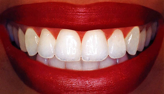 1117 Неожиданный враг современных зубов