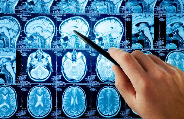 1400090841_mrt-mozga Стресс может привести к потере памяти