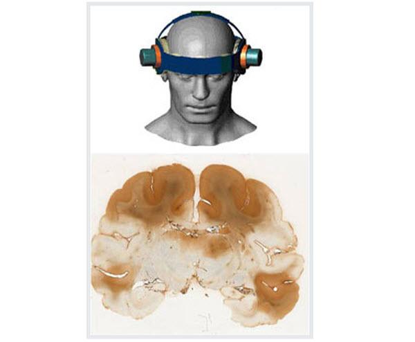 2504 Противоопухолевую терапию усилят новым ультразвуковым аппаратом