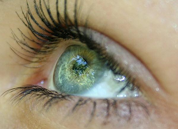 361 Звёздочки из глаз помогут слепым прозреть?