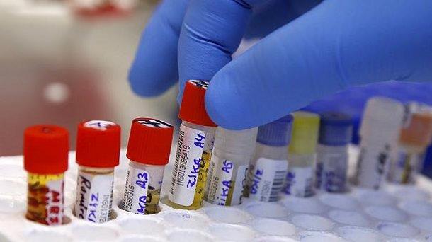 606x340_323088 Немецкие ученые создали тест на определение вируса Зика