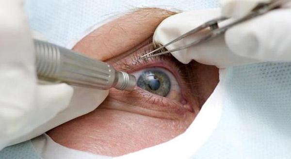 716 Лечение катаракты