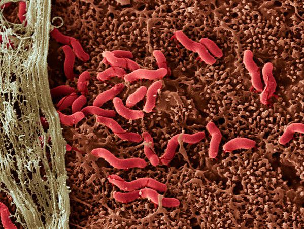 80 Кишечная микрофлора в ответе за наш вес