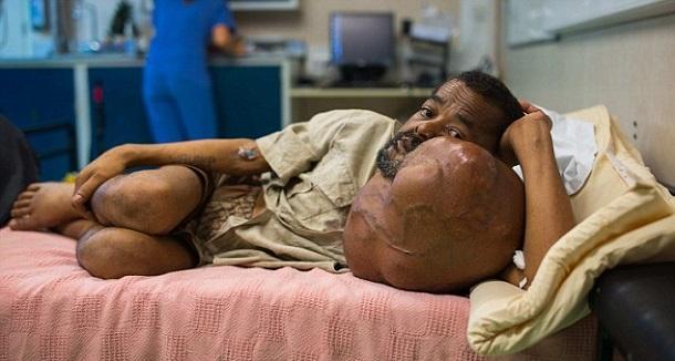 81009120 Жителю Мадагаскара удалили 7-килограммовую опухоль