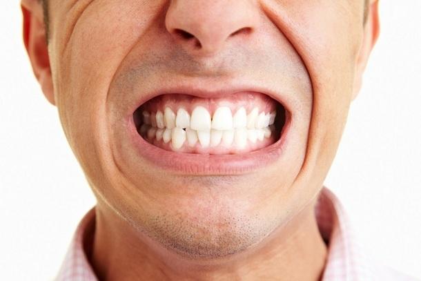 887299_1_fotolia_15684791_subscription_yearly_xxl У людей, склонных к социофобии, намного чаще возникают проблемы с зубами