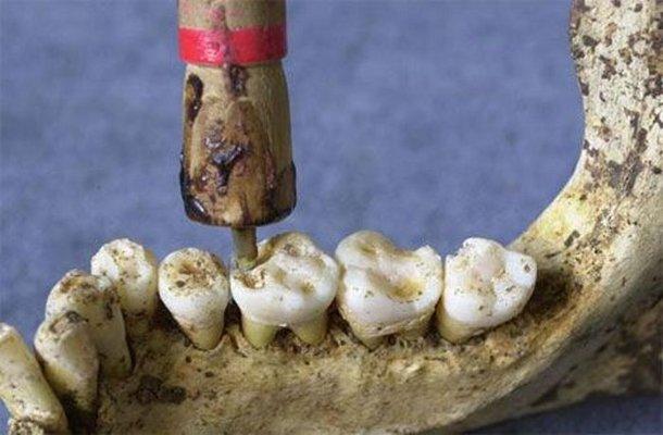 ancient-dentist-tools Компьютерная томография зубов помогла ученым выяснить, как в древнем мире пломбировали зубы