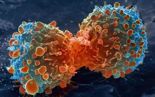 cancer-lambert_2469736a Сахар способствует росту раковых клеток