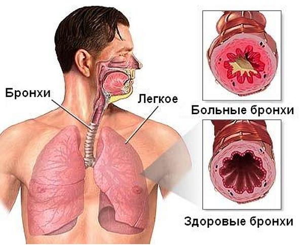 d0b1d180d0bed0bdd185d0b8 Бороться с астмой помогут вкусовые рецепторы в лёгких