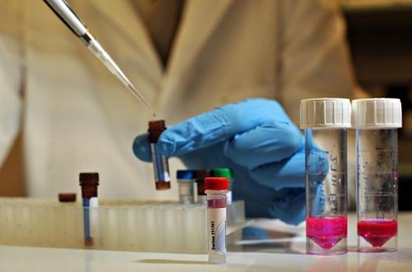 d0b2d0b0d0bad186d0b8d0bdd0b0 Вакцина против ВИЧ от питерских ученых