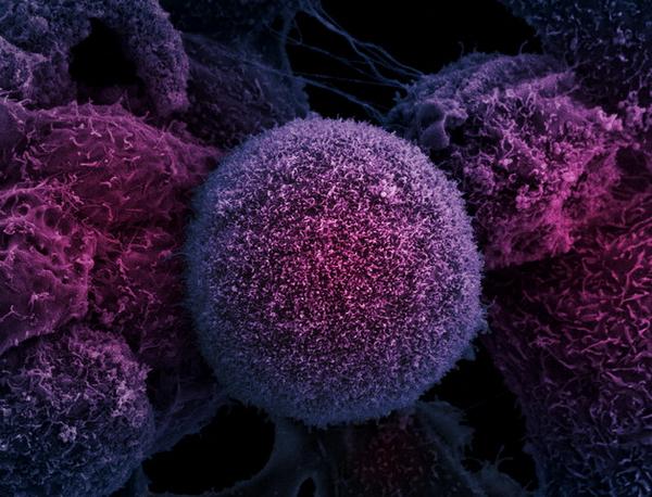 d180d0b0d0ba-d0bad0bbd0b5d182d0bad0b0 Клетки рака «научились» обманывать химиотерапию