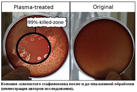 d185d0bed0bbd0bed0b4 Холодная плазма против хронических раневых инфекций