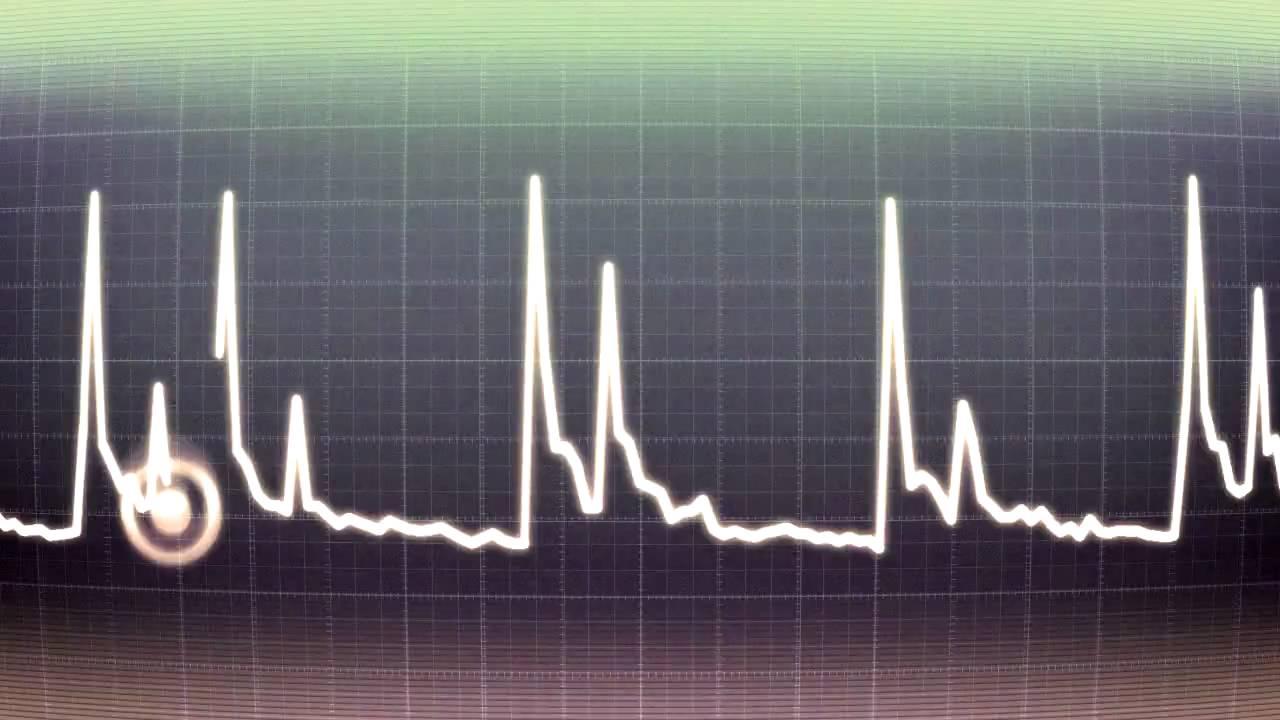 maxresdefault Создана система заблаговременного предупреждения остановки сердца