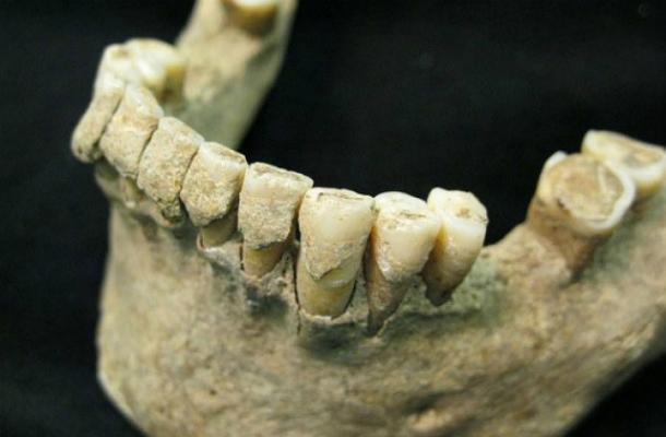 o_9032672 Зубы помогут установить причину смерти человека