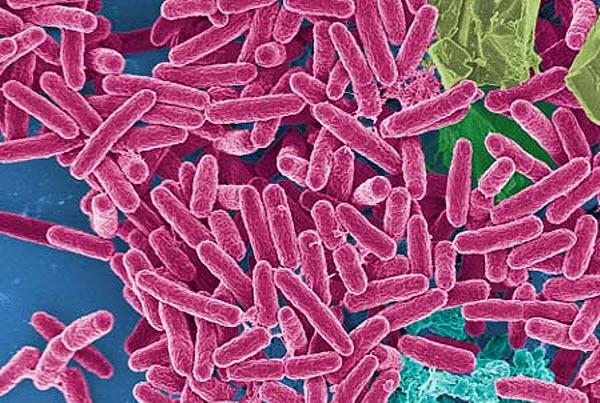 pseudomonas-aeruginosa Бактерии-космонавты опаснее, чем земные?