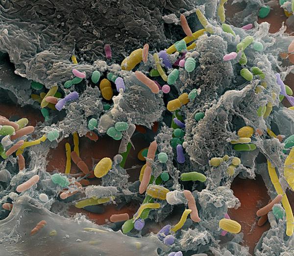 q95 Учёные нашли бактерию похудения