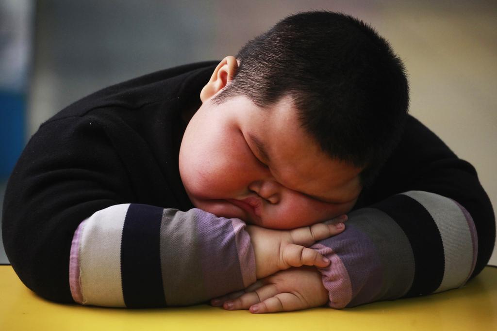 rtr2kl9s Ожирение приводит к сбоям в работе мозга