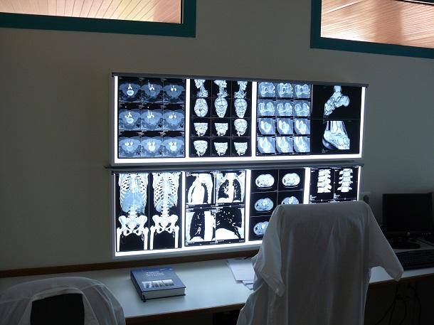 salle_radiologie_2 Что такое негатоскоп и для чего он используется?